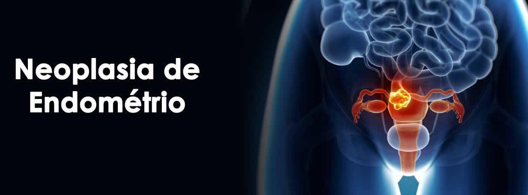Neoplasia de Endométrio